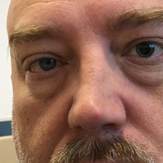 Pupil dilated to check the retina.